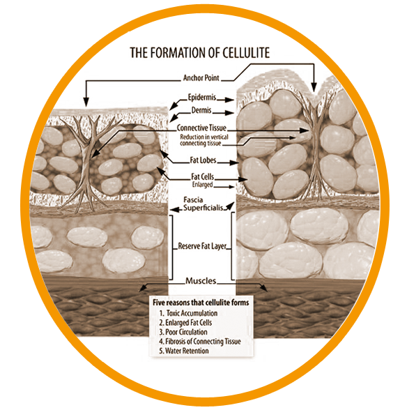 5395febad57e6a8757447496_formation-of-cellulite.png
